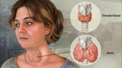 что не любит щитовидная железа